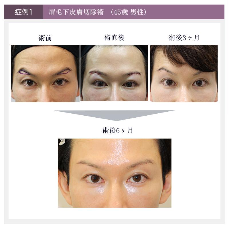 眉下切開手術の症例