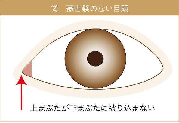 目頭の重なりが整った目の図