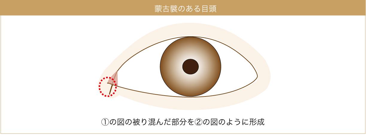 目頭切開の施術部位の図